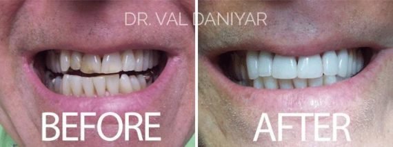 Smile Restoration before and after photos in Naples, FL