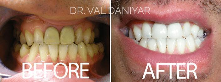 Teeth Whitening Before and After Photos in Naples, FL, Patient 2934