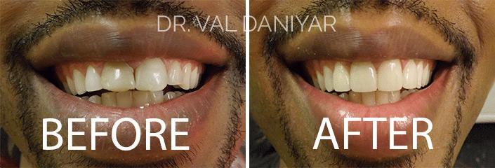 Crowns, Bridges and Implants Before and After Photos in Naples, FL, Patient 2986