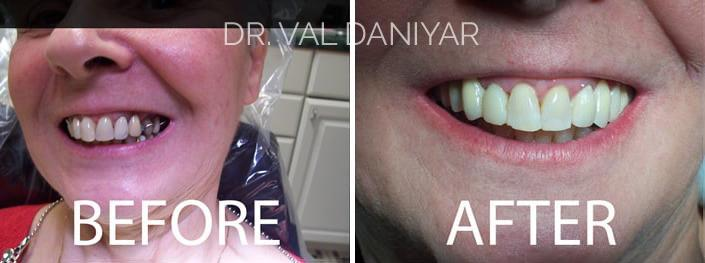 Smile Makeover Before and After Photos in Naples, FL, Patient 3026