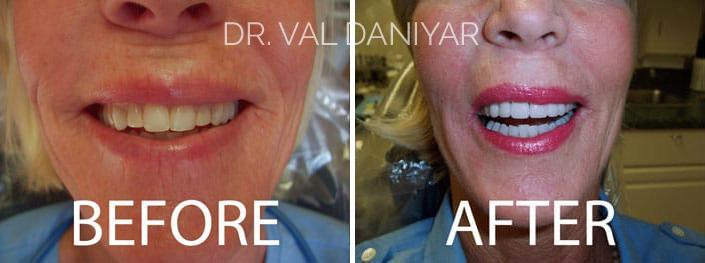 Smile Makeover Before and After Photos in Naples, FL, Patient 3038