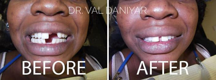 Crowns, Bridges and Implants Before and After Photos in Naples, FL, Patient 3042