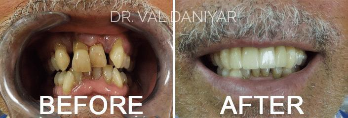 Crowns, Bridges and Implants Before and After Photos in Naples, FL, Patient 3292