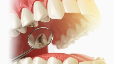 Crowns, fillings, bridges can fail over time
