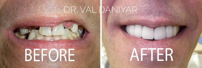 Smile Makeover Before and After Photos in Naples, FL, Patient 3346
