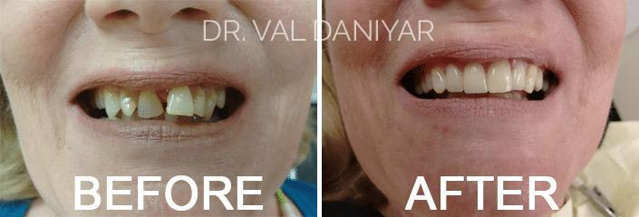 Smile Makeover Before and After Photos in Naples, FL, Patient 3305
