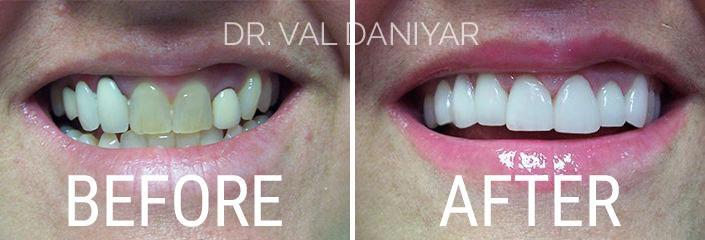 Smile Makeover Before and After Photos in Naples, FL, Patient 3310
