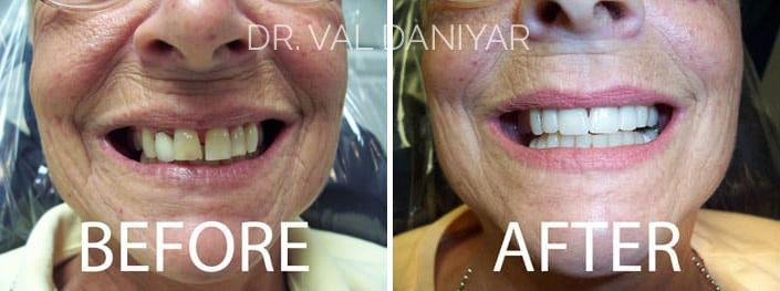 Smile Makeover Before and After Photos in Naples, FL, Patient 3316
