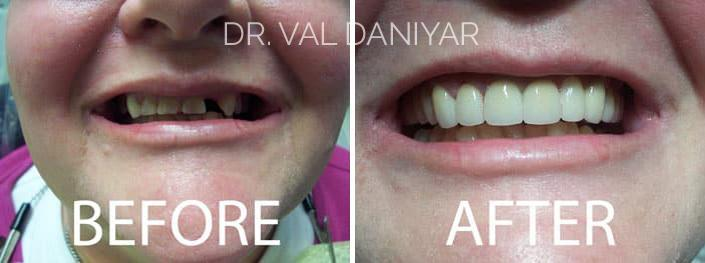 Smile Makeover Before and After Photos in Naples, FL, Patient 3320