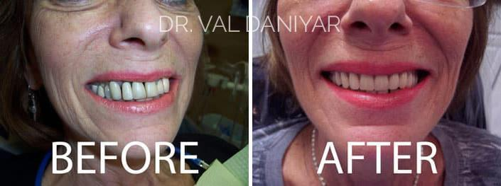 Smile Makeover Before and After Photos in Naples, FL, Patient 3341
