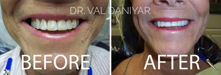 Smile Restoration Before and After Photos in Naples, FL, Patient 3335
