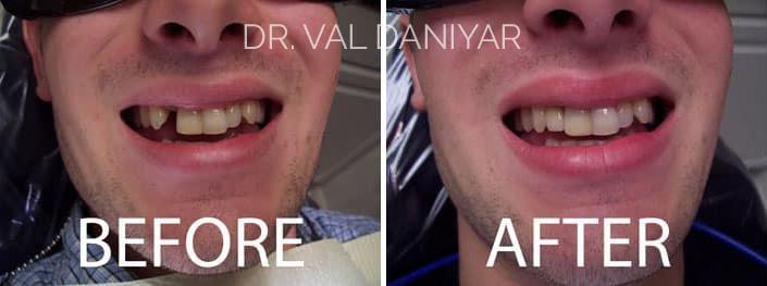 Smile Restoration Before and After Photos in Naples, FL, Patient 3373