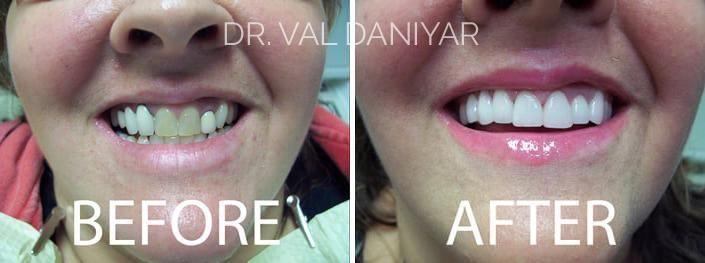Veneers Before and After Photos in Naples, FL, Patient 3300
