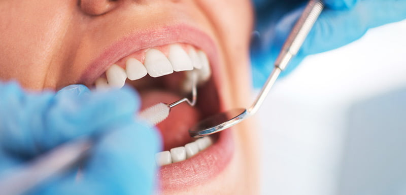 Oral Surgery in Naples, FL