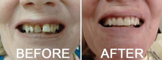 Before and After Photos in Naples, FL, Dental Bridges