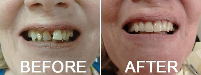 Crowns, Bridges and Implants Before and After Photos in Naples, FL, Patient 3304